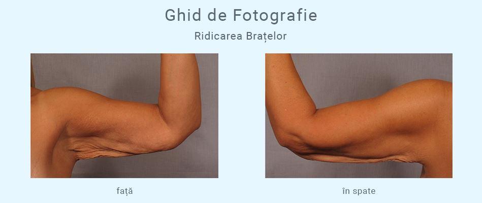 Pierderea masei musculare în brațele superioare