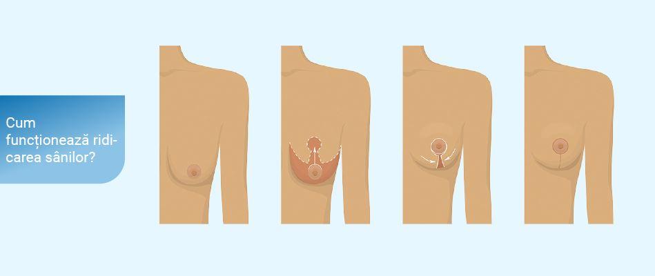 sâcâi sânii după pierderea în greutate