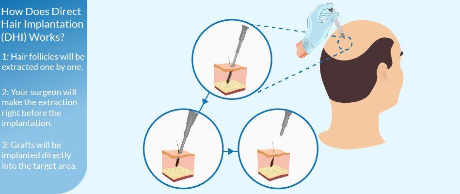 colanții varicoz au ajutat sângerarea din nas în varicoză