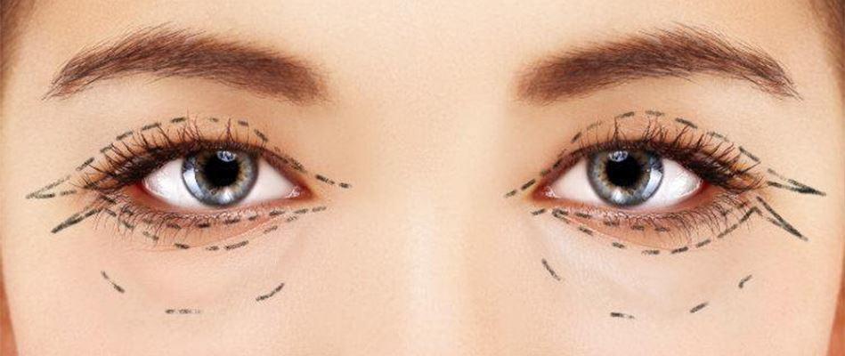 O hernie a pleoapelor afectează vederea când vederea este încețoșată