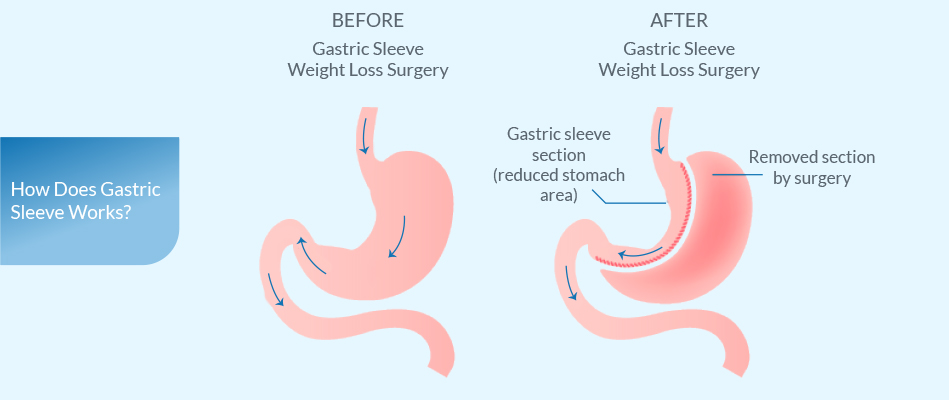 Stay up to date with weight loss surgery procedures tips